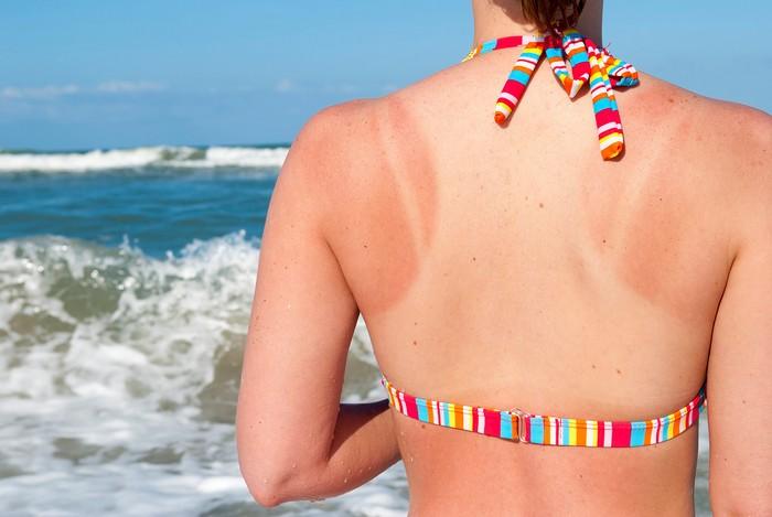 rid-sun-tan-naturally