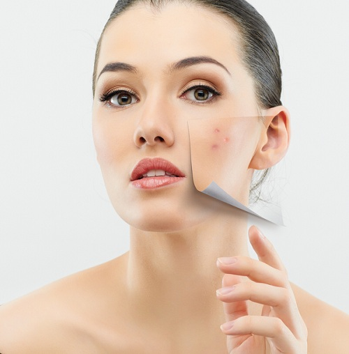 7 Best Products to Control Acne